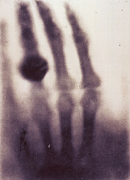 Roentgen's first x-ray of his wife's hand